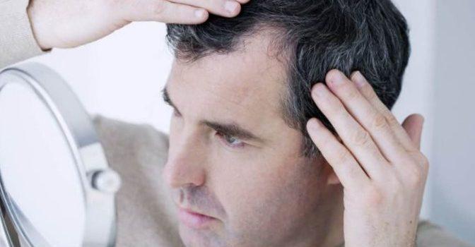 Notre avis sur l'efficacité de la greffe de cheveux